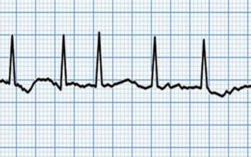 Técnica desenvolvida por pesquisadores gaúchos é apresentada em Simpósio Internacional de Cirurgia Cardiovascular